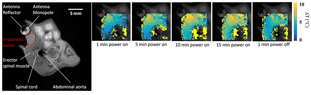 MRI Images of in vivo microwave exposure