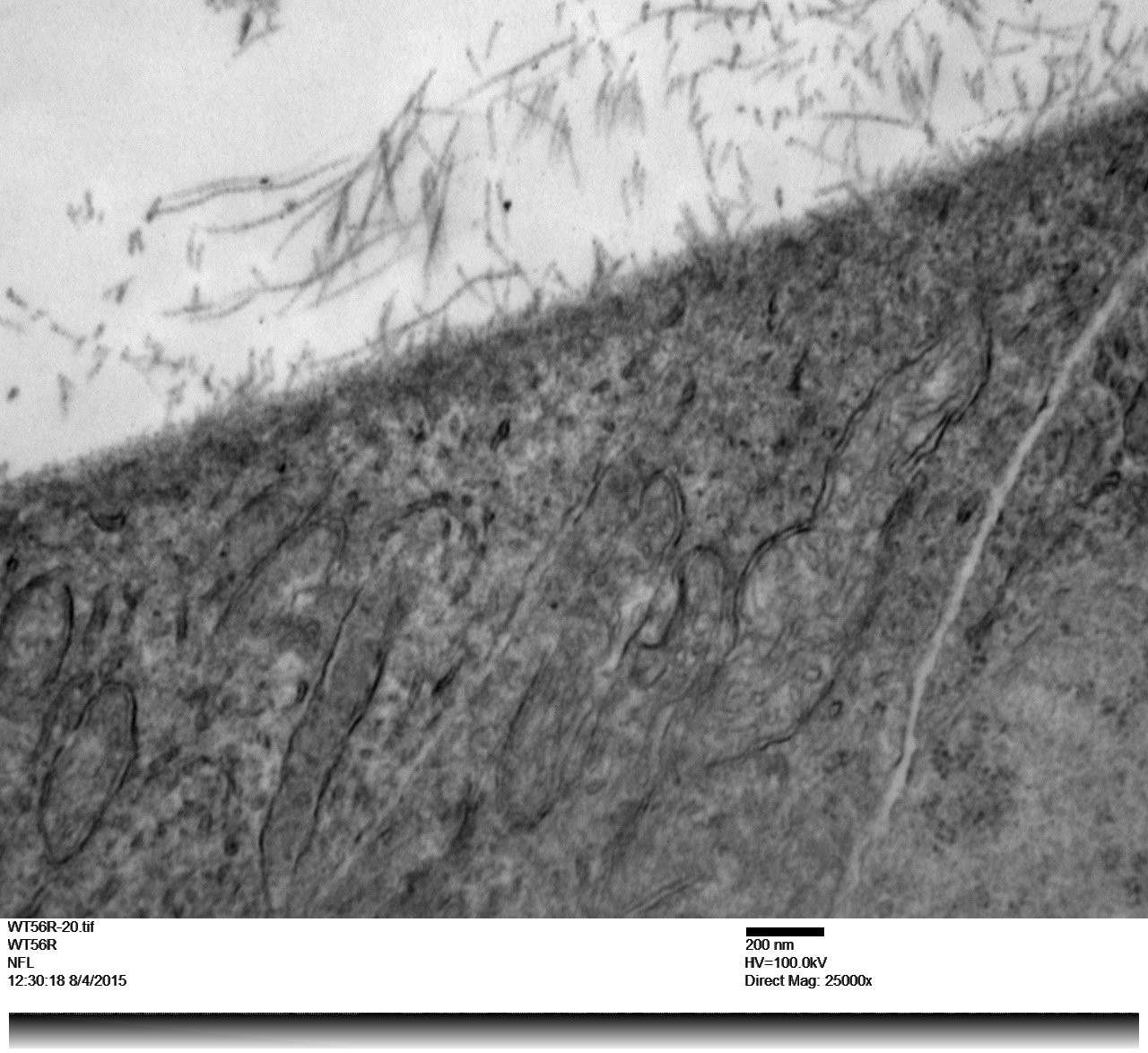 Mouse retina inner limiting membrane showing fibers from the vitrious humor