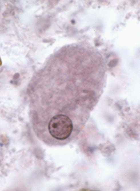 entamoeba coli behandling