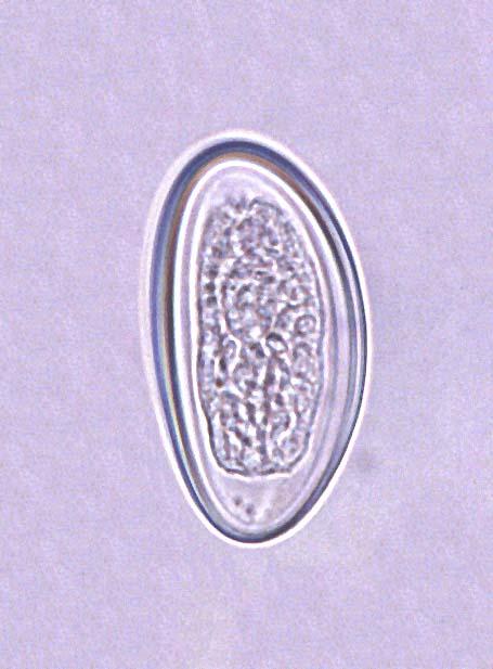 human pinworm