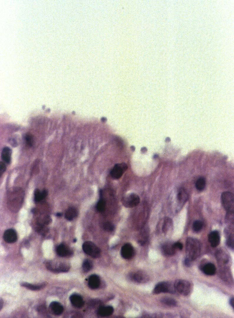 széles spektrumú enterobiosis megelőzés a belek megtisztítása a paraziták szódaból
