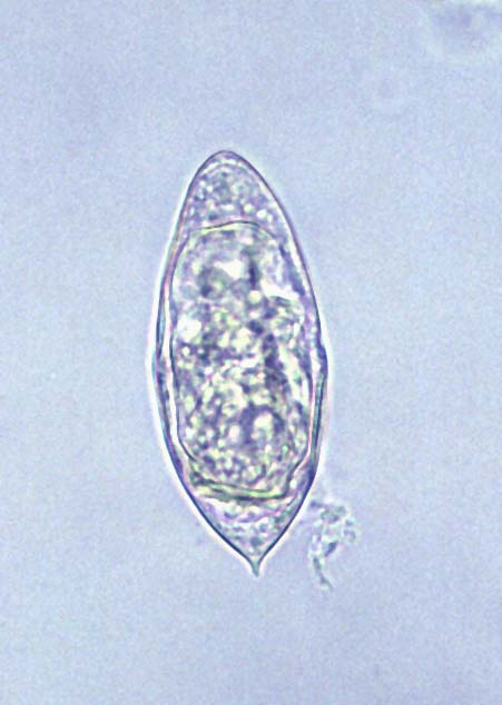 Schistosomiasis eggs