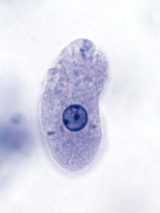 entamoeba histolytica slide - photo #38