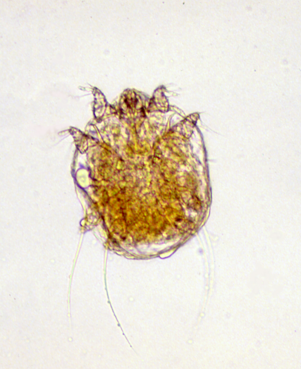 Slideshow: Pictures of scabies - WebMD Boots