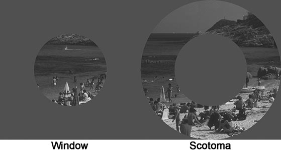 Scene gist (Window vs Scotoma)